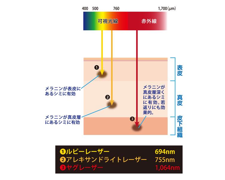 Qスイッチモードを搭載したレーザー比較