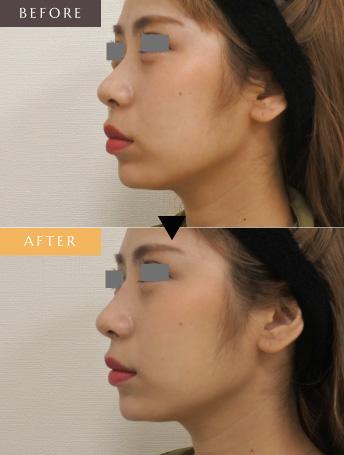 鼻筋/アゴ ヒアルロン酸形成