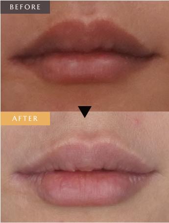 唇 ヒアルロン酸形成