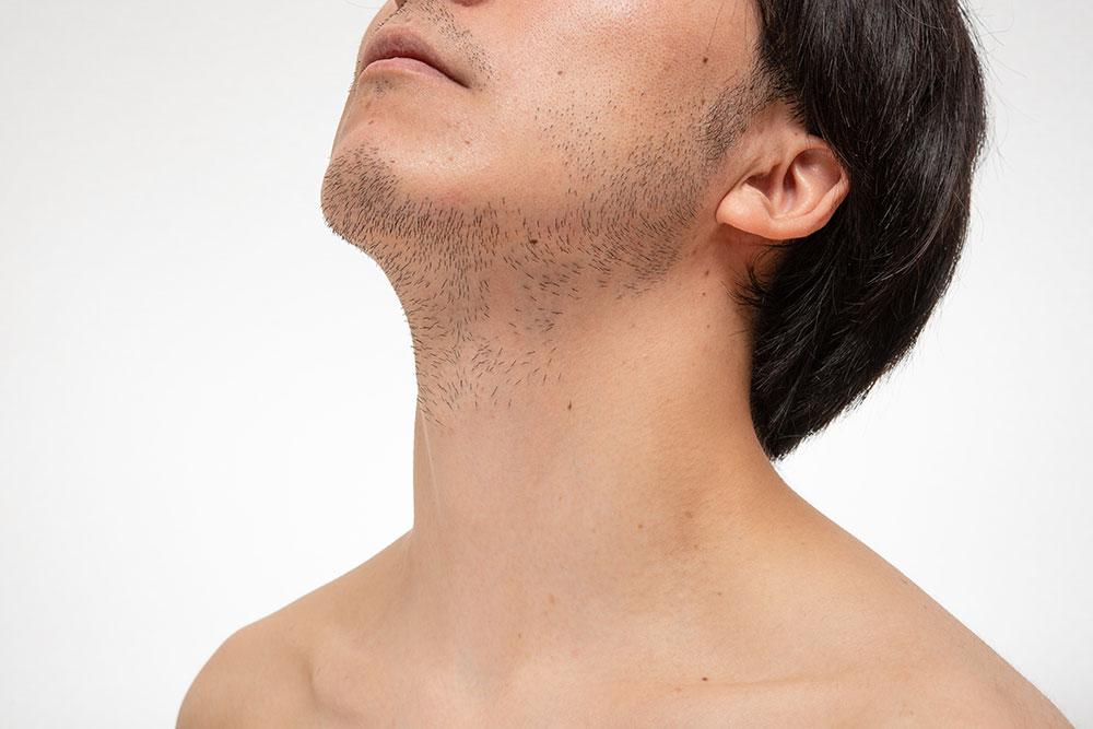 医療脱毛のヒゲ脱毛で自己処理にかかる時間・肌トラブルを解消しよう