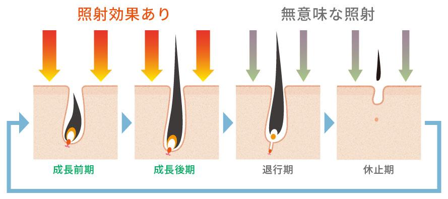 成長期の毛にレーザーを照射することで脱毛効果が得られます。