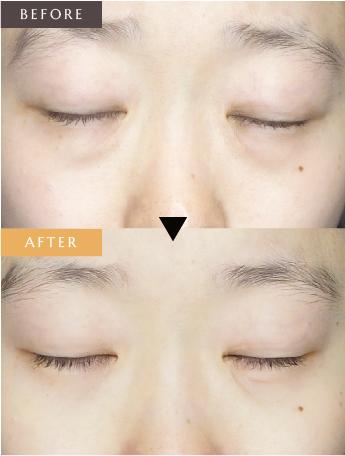 目の下の脂肪取り(結膜法)