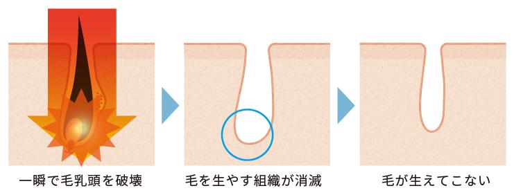 熱破壊式(ショット式)式レーザーの仕組み