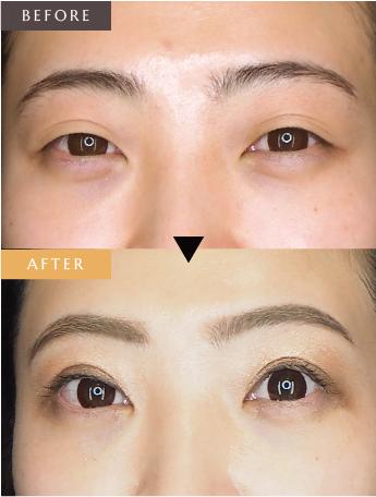 眼瞼下垂(切開法)