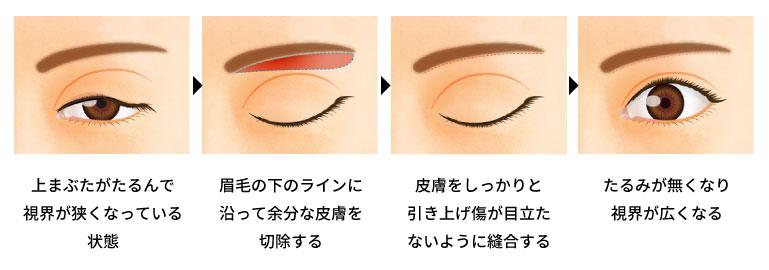 眉下切開法の手術の方法