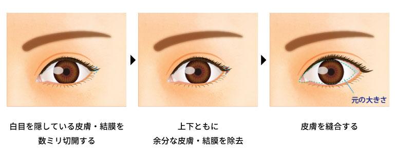 目尻切開法の手術の方法