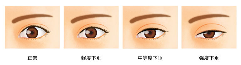 眼瞼下垂の進行度