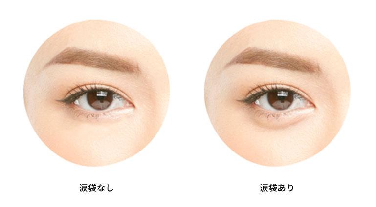 涙袋の印象の比較