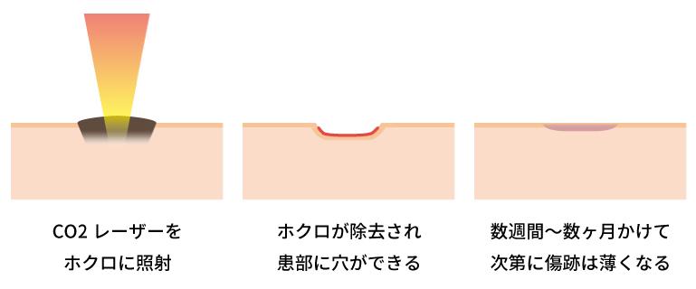 ホクロ除去の過程